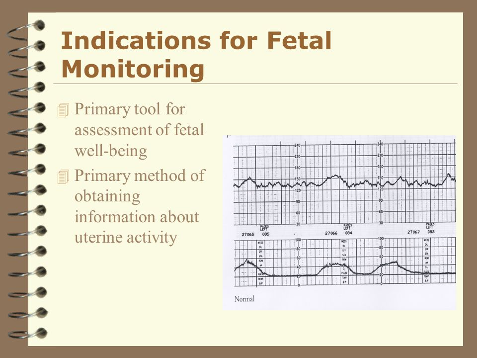 Indications for Fetal Monitoring