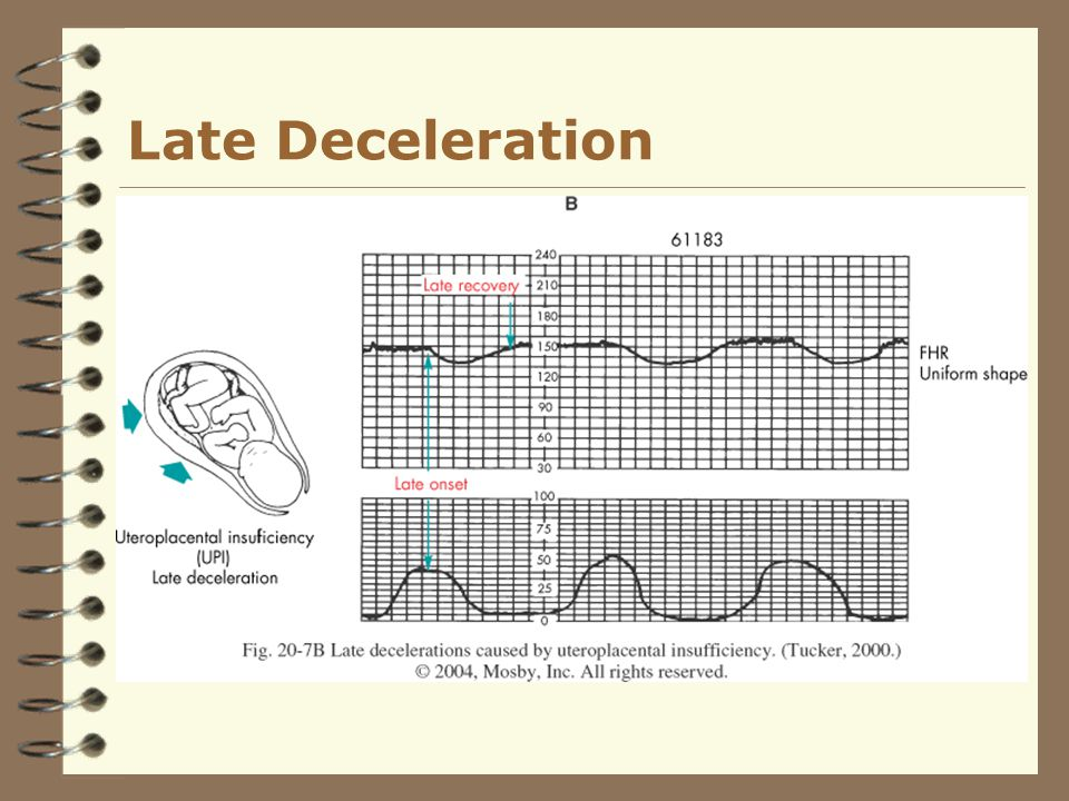 Late Deceleration