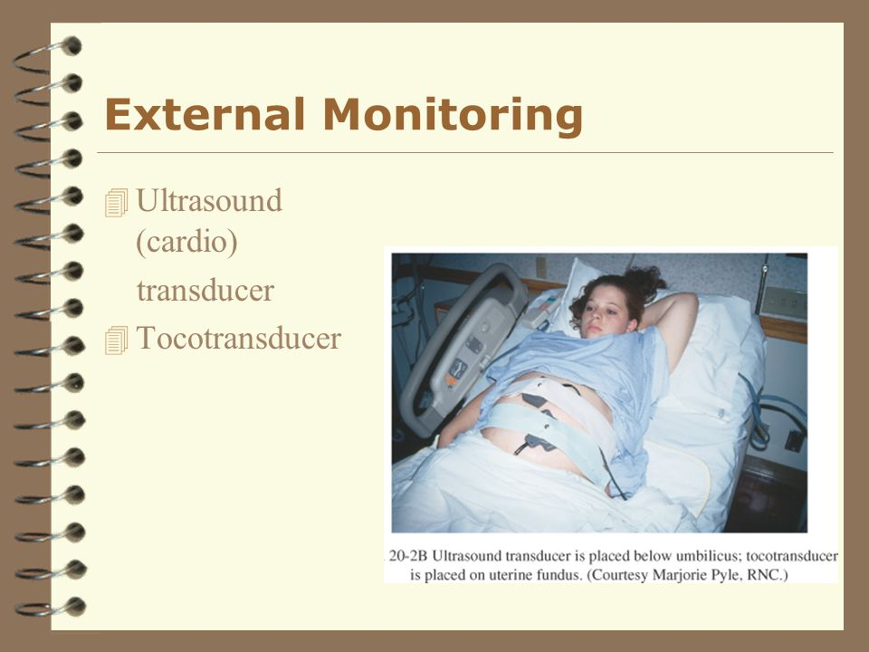 External Monitoring Ultrasound (cardio) transducer Tocotransducer