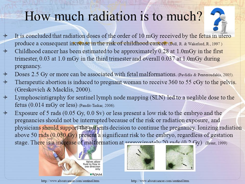 How much radiation is to much