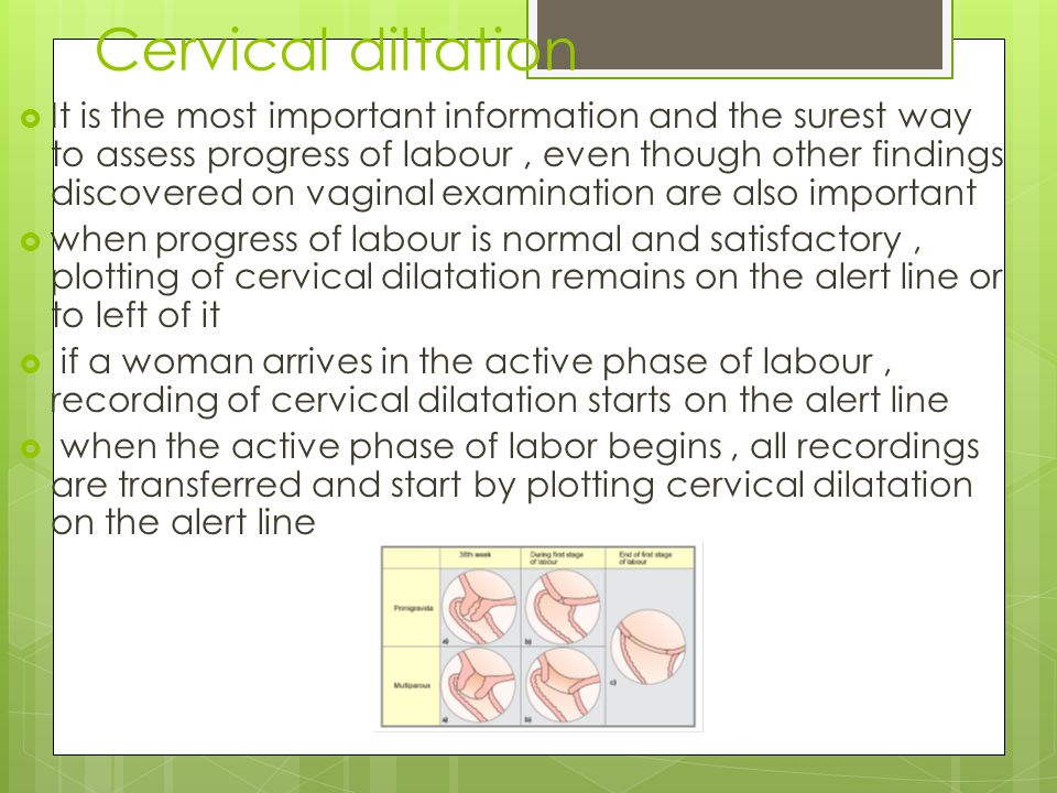 Cervical diltation