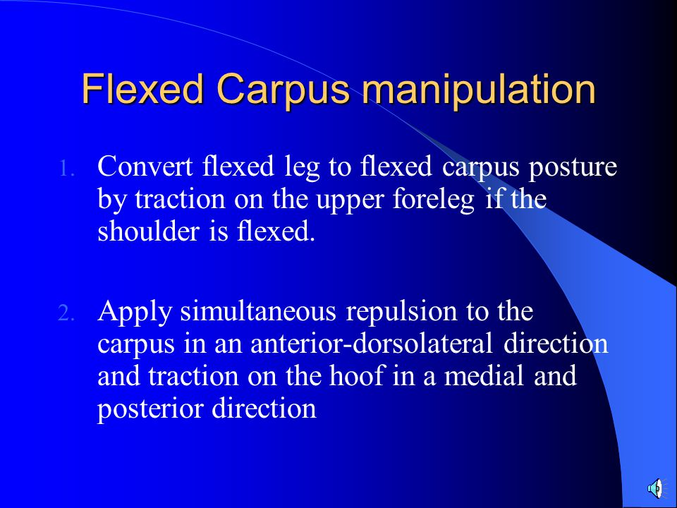 Flexed Carpus manipulation