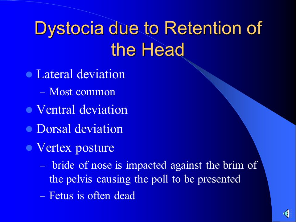 Dystocia due to Retention of the Head