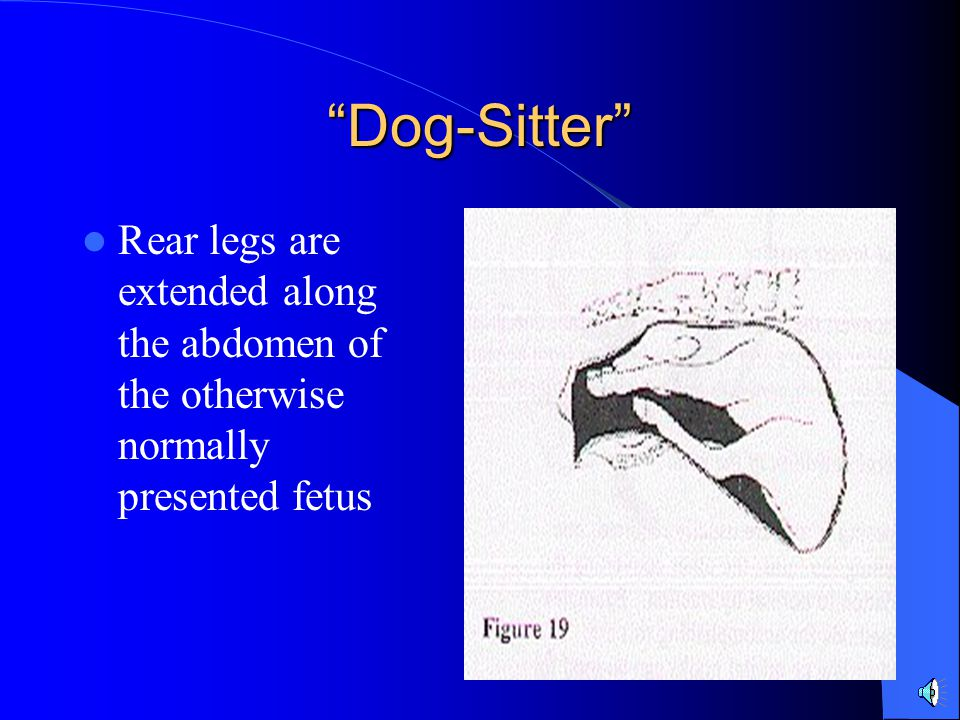 Dog-Sitter Rear legs are extended along the abdomen of the otherwise normally presented fetus