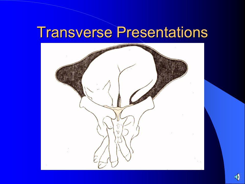 Transverse Presentations