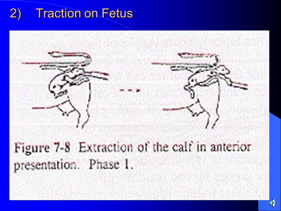 Traction on Fetus