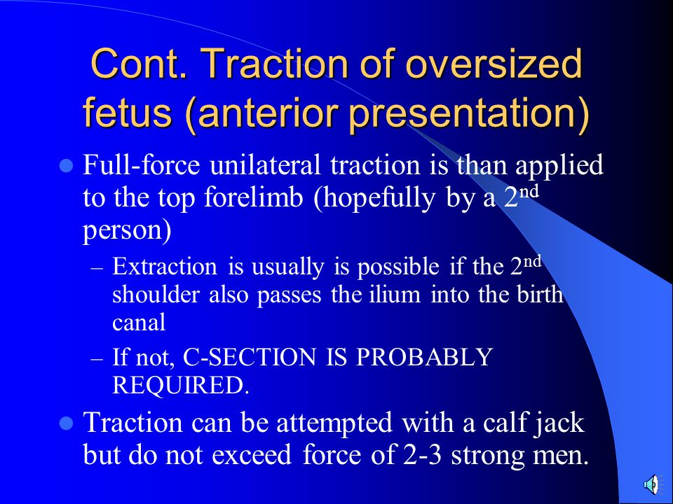Cont. Traction of oversized fetus (anterior presentation)