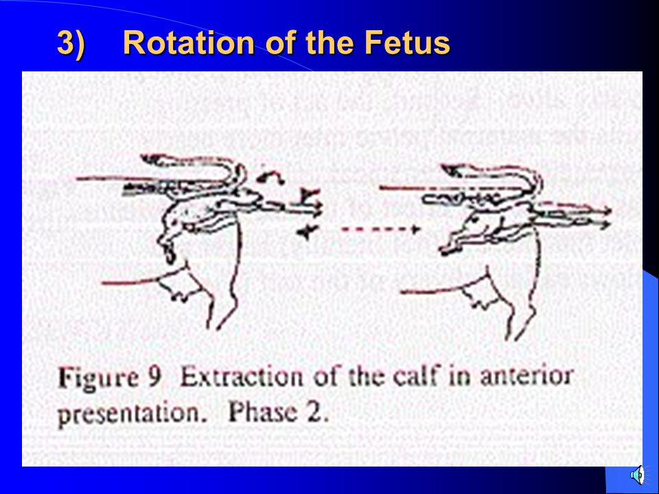 3) Rotation of the Fetus