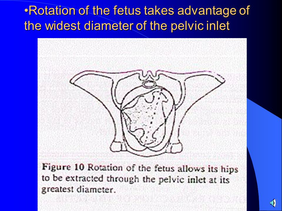 Rotation of the fetus takes advantage of the widest diameter of the pelvic inlet