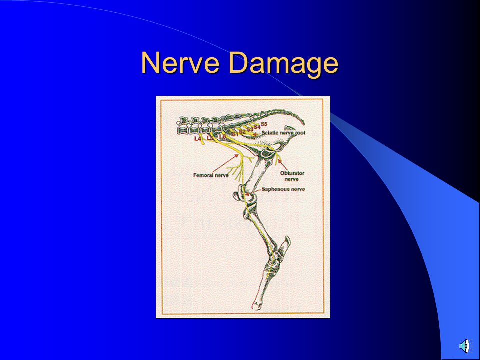 Nerve Damage Injury to the femoral n most commonly assoc w/ severe stretching of the n and assoc mm.