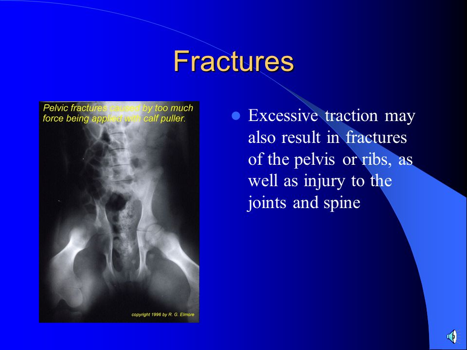 Fractures Excessive traction may also result in fractures of the pelvis or ribs, as well as injury to the joints and spine.