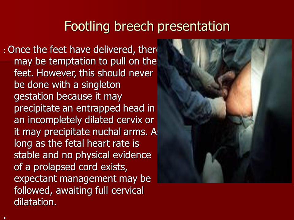 Footling breech presentation
