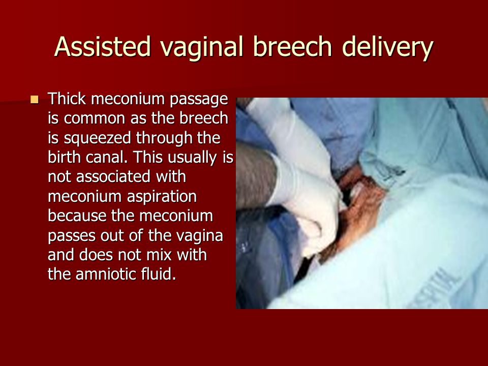 Assisted vaginal breech delivery