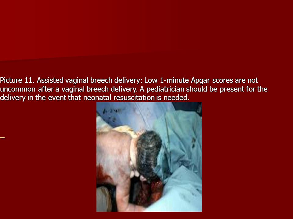 Picture 11. Assisted vaginal breech delivery: Low 1-minute Apgar scores are not uncommon after a vaginal breech delivery. A pediatrician should be present for the delivery in the event that neonatal resuscitation is needed.
