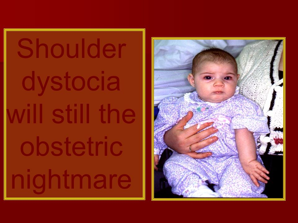 Shoulder dystocia will still the obstetric nightmare