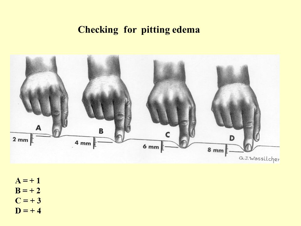 Checking for pitting edema