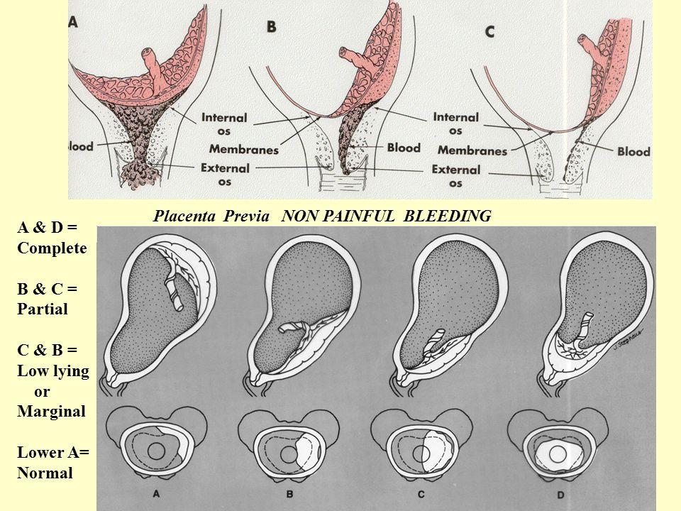 Placenta Previa NON PAINFUL BLEEDING