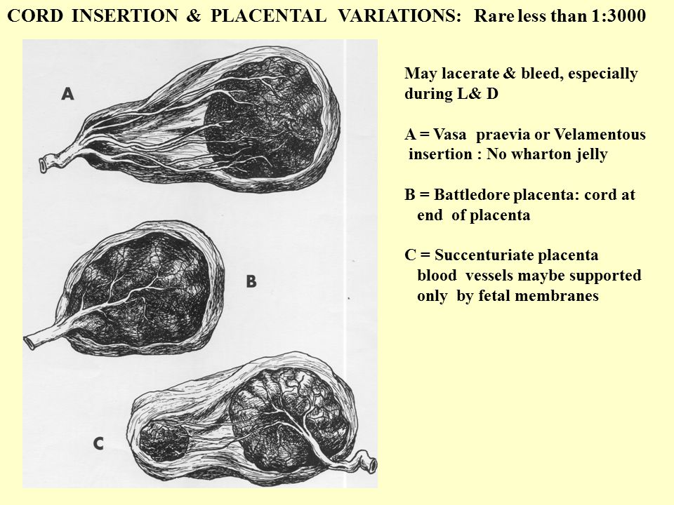 CORD INSERTION & PLACENTAL VARIATIONS: Rare less than 1:3000