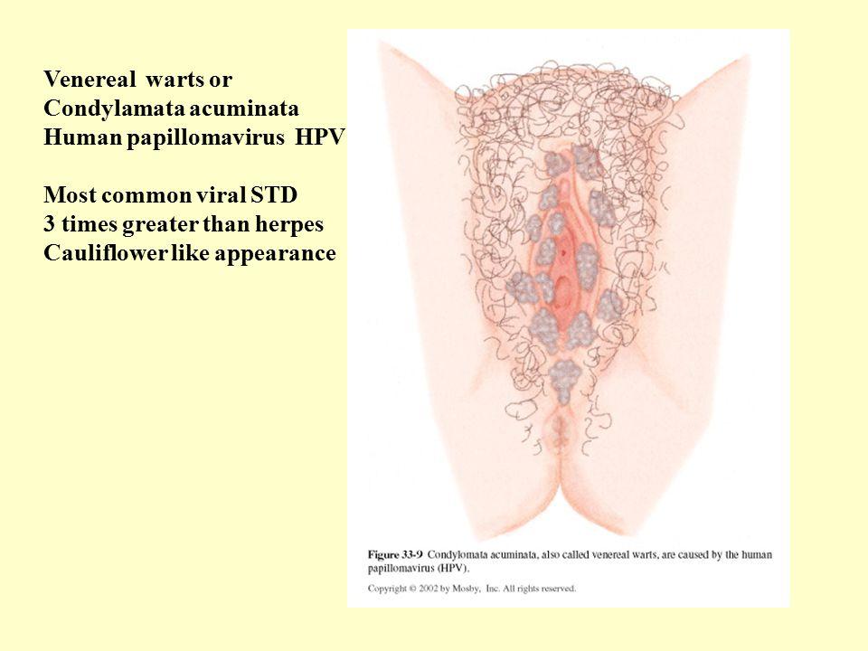 Venereal warts or Condylamata acuminata. Human papillomavirus HPV. Most common viral STD. 3 times greater than herpes.