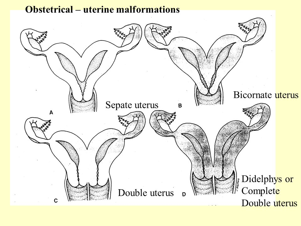 Obstetrical – uterine malformations