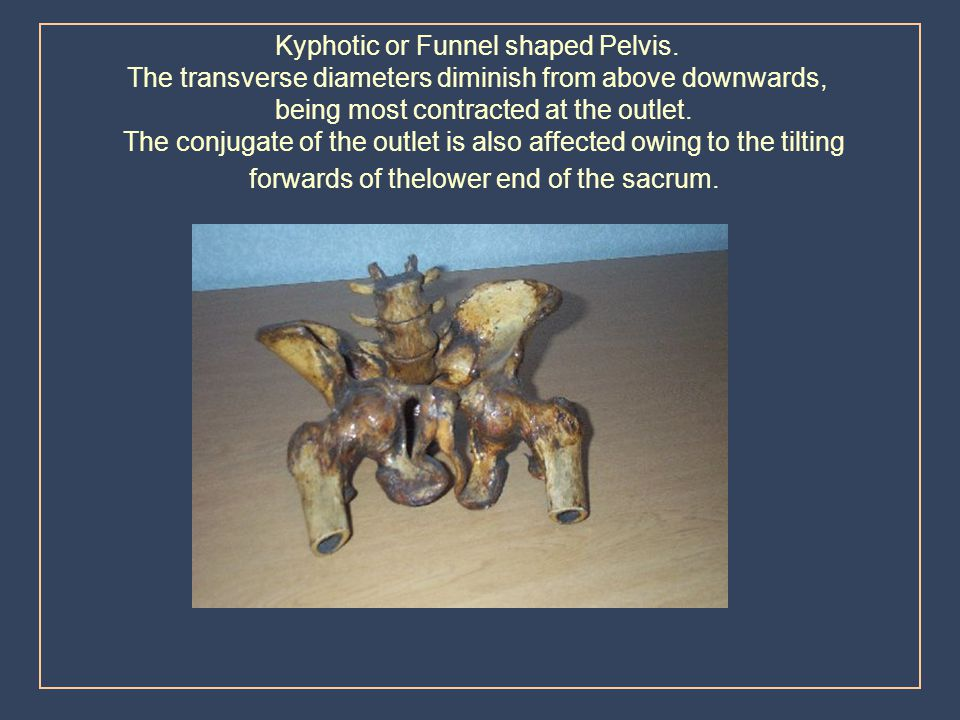 Kyphotic or Funnel shaped Pelvis.