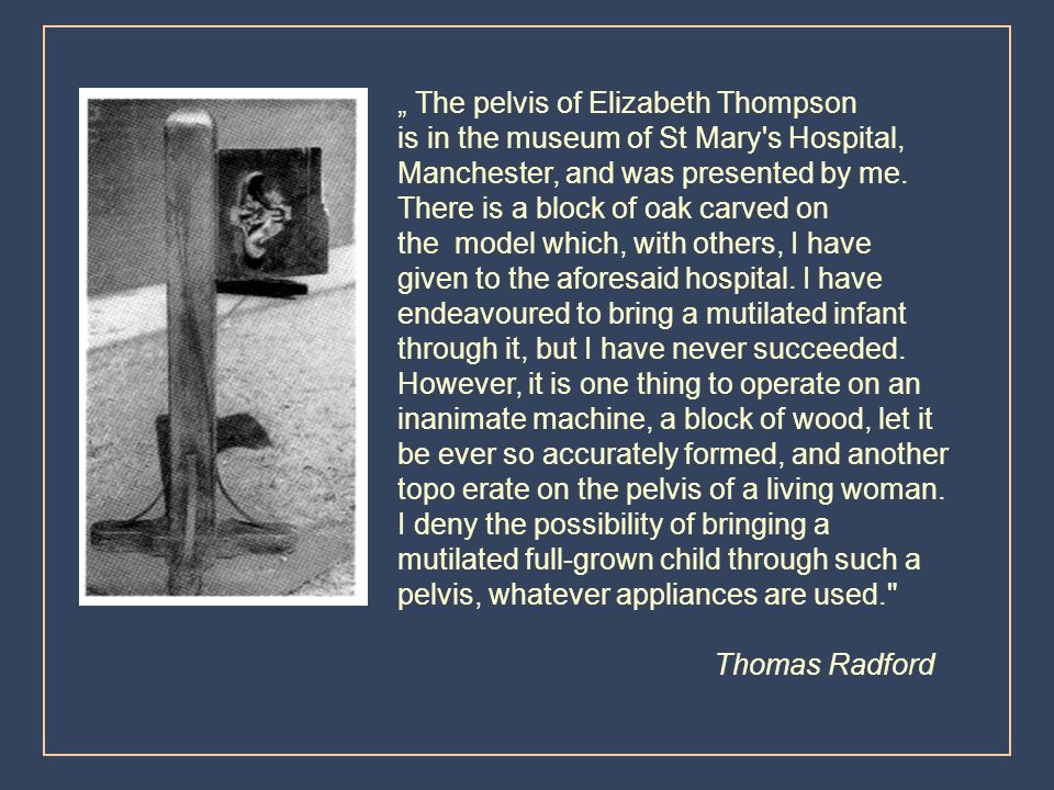 """ The pelvis of Elizabeth Thompson"