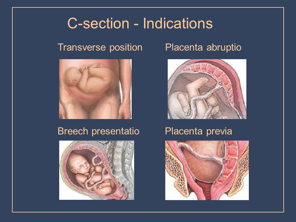 C-section - Indications