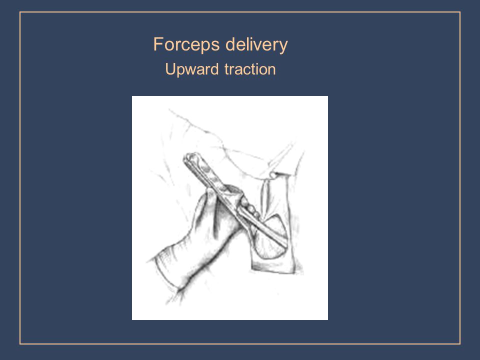 Forceps delivery Upward traction