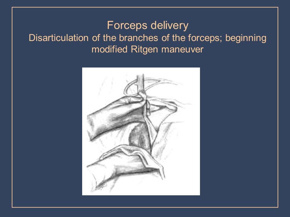 Forceps delivery Disarticulation of the branches of the forceps; beginning modified Ritgen maneuver