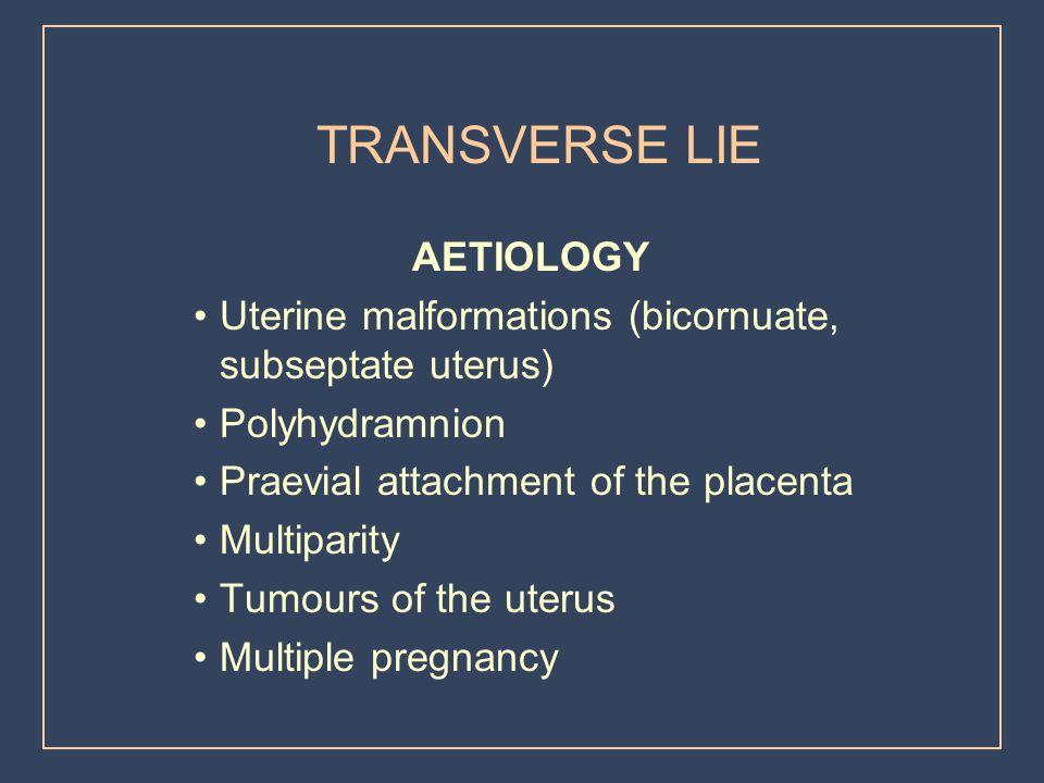 TRANSVERSE LIE AETIOLOGY