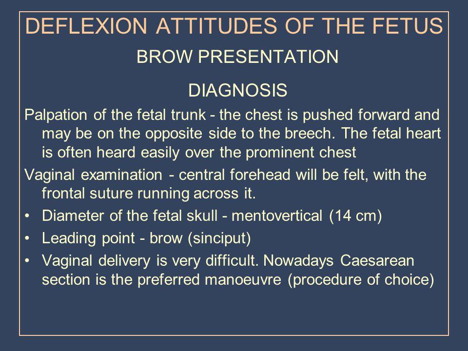 DEFLEXION ATTITUDES OF THE FETUS
