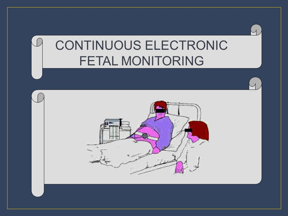 CONTINUOUS ELECTRONIC FETAL MONITORING
