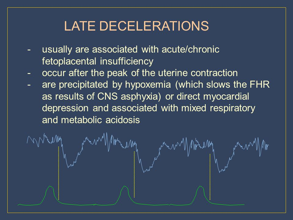 LATE DECELERATIONS usually are associated with acute/chronic fetoplacental insufficiency. occur after the peak of the uterine contraction.