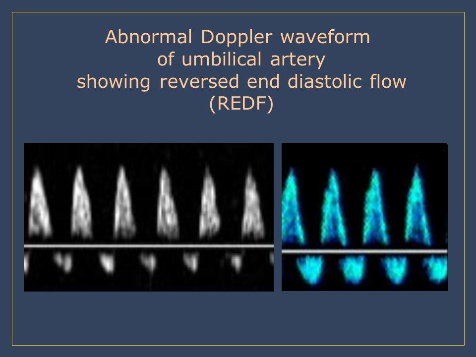 Abnormal Doppler waveform of umbilical artery