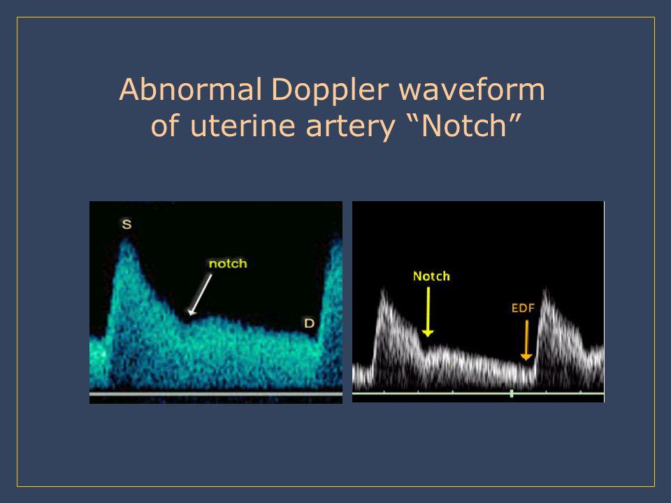 Abnormal Doppler waveform of uterine artery Notch