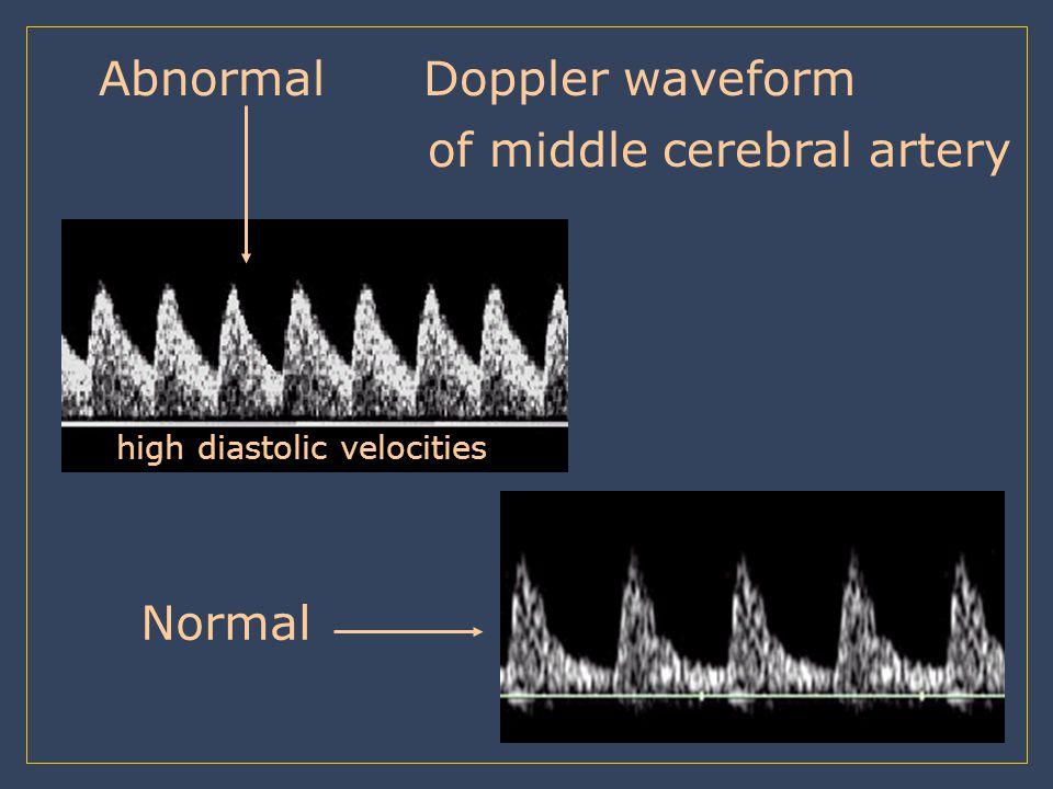 Abnormal Doppler waveform of middle cerebral artery