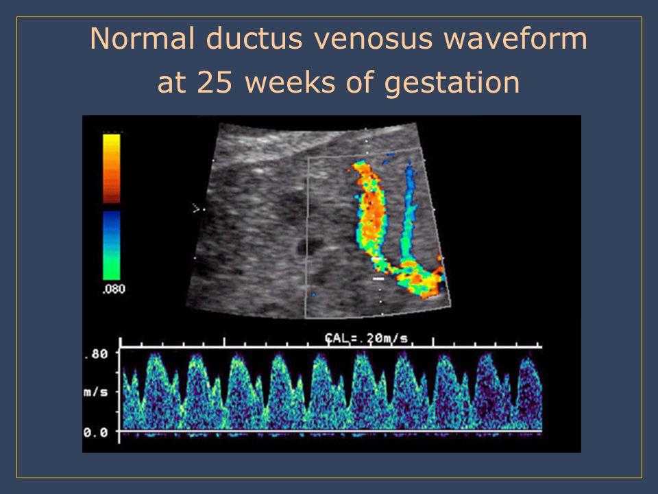 Normal ductus venosus waveform