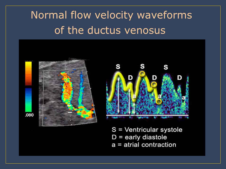 Normal flow velocity waveforms