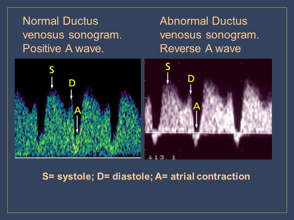 Normal Ductus venosus sonogram. Positive A wave.