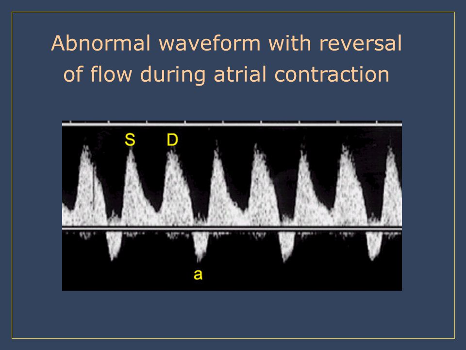 Abnormal waveform with reversal of flow during atrial contraction