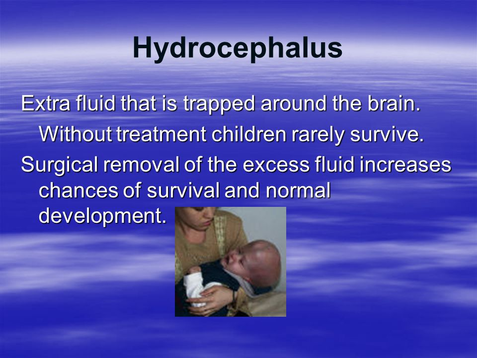 Hydrocephalus Extra fluid that is trapped around the brain.