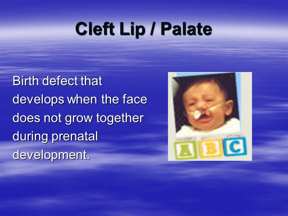 Cleft Lip / Palate Birth defect that develops when the face