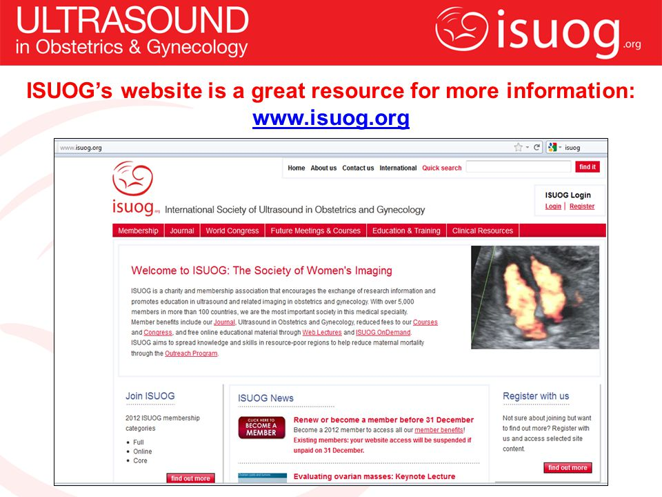 ISUOG's website is a great resource for more information: www. isuog