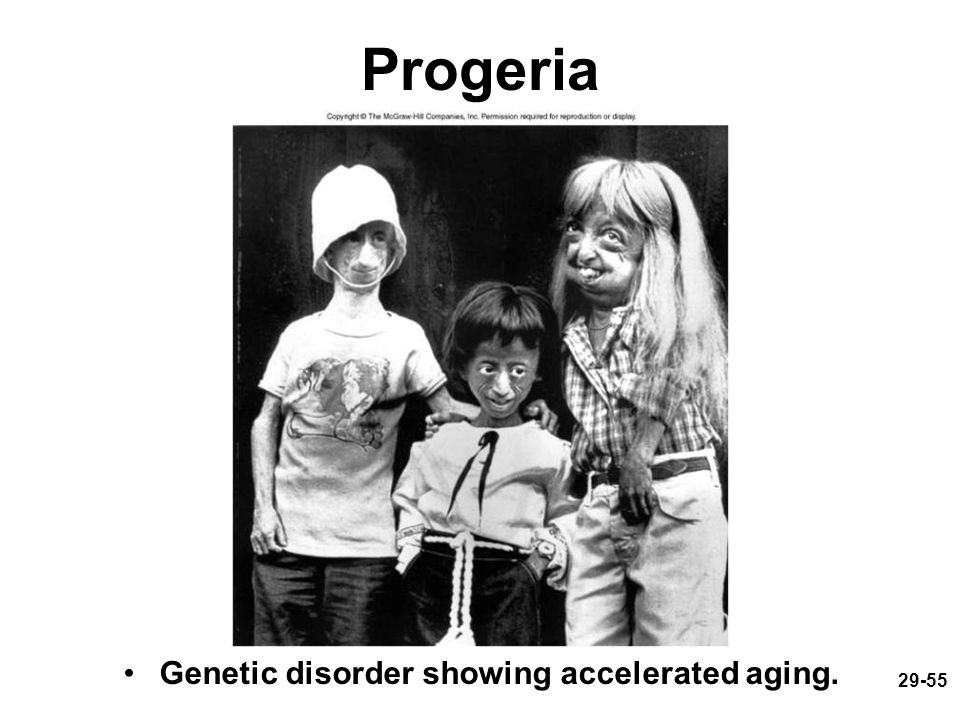 Progeria Genetic disorder showing accelerated aging.