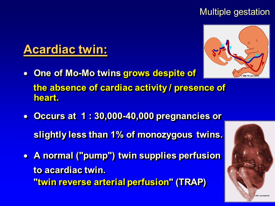 Acardiac twin: Multiple gestation One of Mo-Mo twins grows despite of