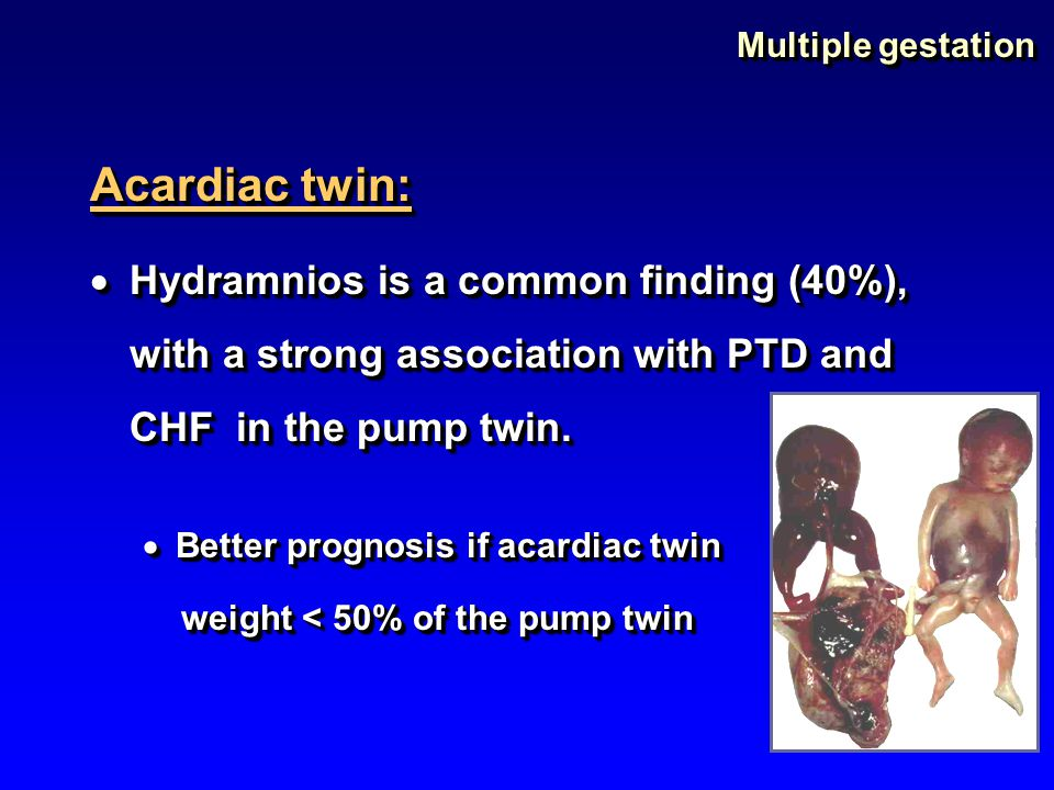 Multiple gestation Acardiac twin: Hydramnios is a common finding (40%), with a strong association with PTD and CHF in the pump twin.