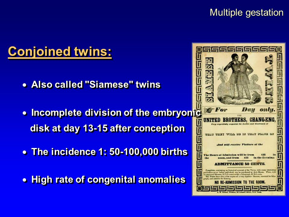 Conjoined twins: Multiple gestation Also called Siamese twins