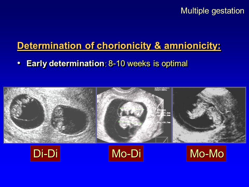 Di-Di Mo-Di Mo-Mo Determination of chorionicity & amnionicity: