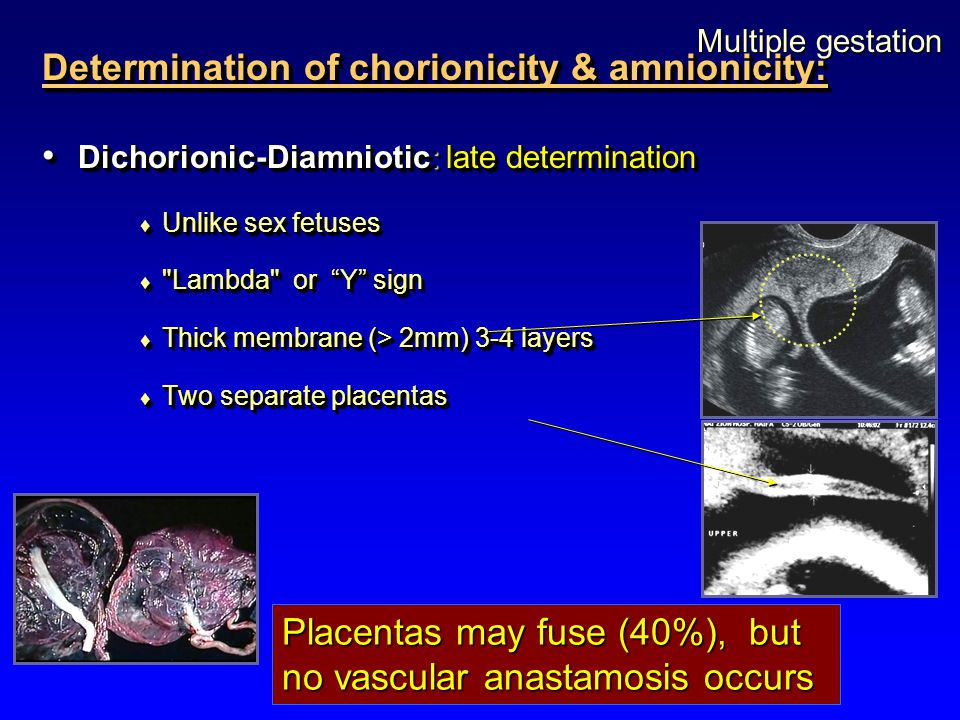 Determination of chorionicity & amnionicity: