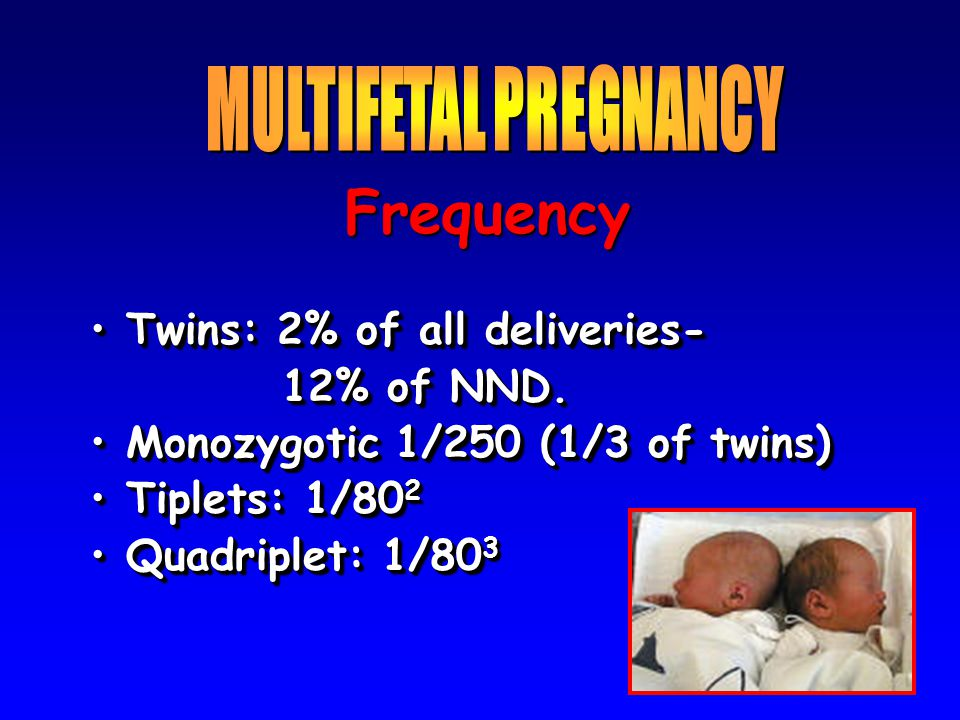 Frequency MULTIFETAL PREGNANCY Twins: 2% of all deliveries-